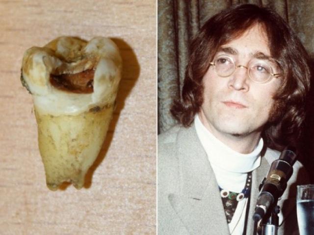 7 странных покупок на аукционах, которые стоят состояние, зуб Джона  Леннона за $31 тысячу